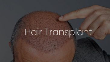 Hair Transplant Clinic in Gurgaon