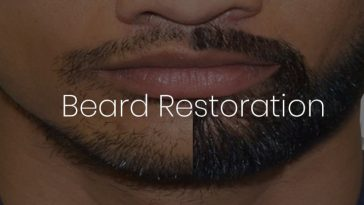 beard restoration in Delhi